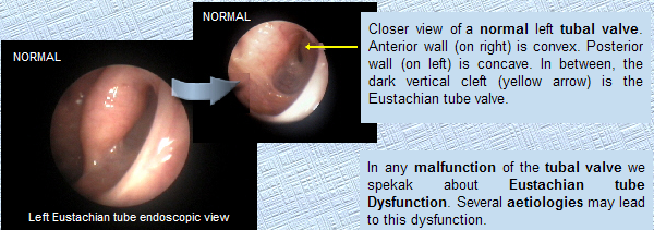 Surgical treatment of eustachian tube dysfunction